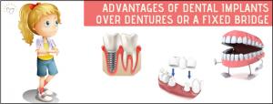 dental implants sunshine