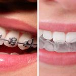How Long Does It Take to Adjust to Invisalign?